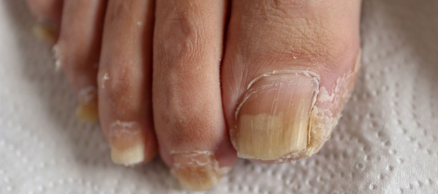 Psoriasis des ongles